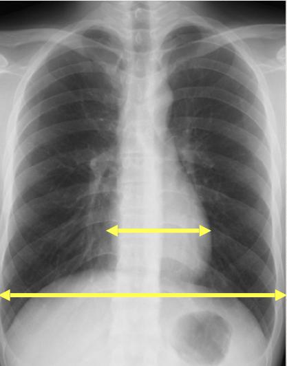 胸部レントゲン:体の幅、心臓の横幅の比率でCTRを求める