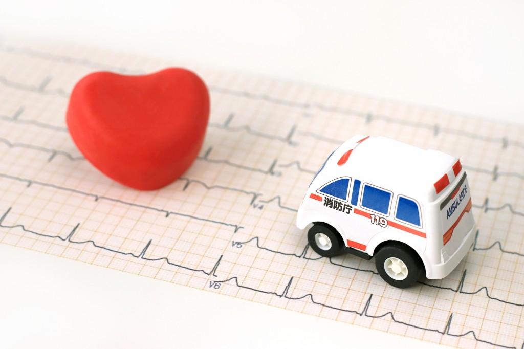 普通の心電図はあくまで一時的な状態です。24時間検査するのが大切です。